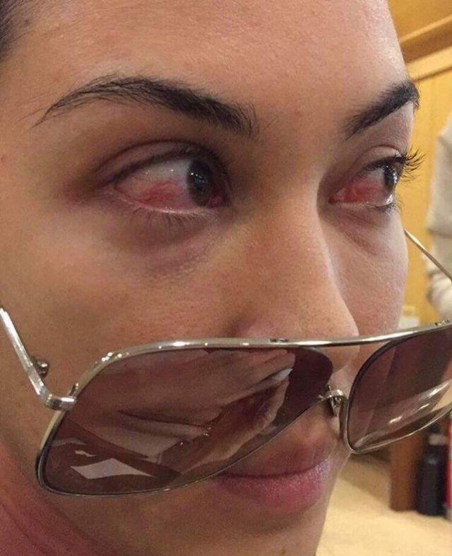 ภาพดวงตาของ แมท ภีรนีย์ ที่ได้รับผลกระทบจากดวงไฟที่ใช้ในการถ่ายแบบ