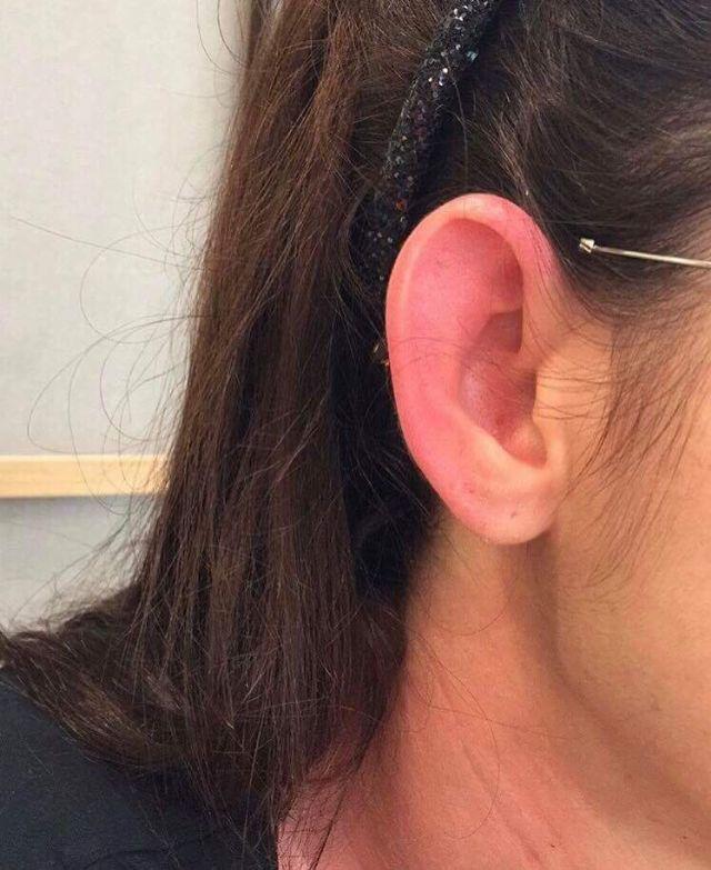 ในหูของ แมท ภีรนีย์ ที่โดนความแรงจากดวงไฟถ่ายแบบจนทำให้หูแดง