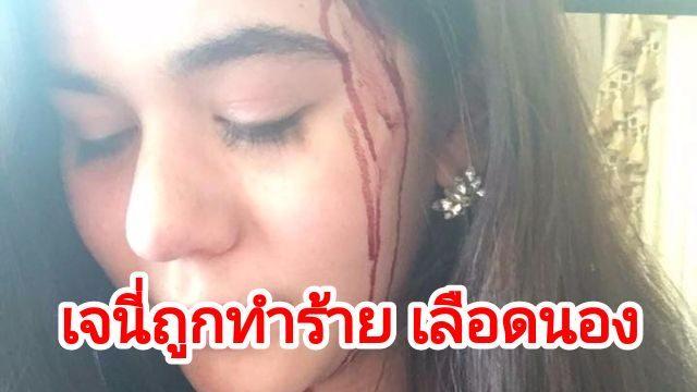 เจนี่ เจนีลา ถูกทำร้าย เลือดอาบหน้า แจ้งความโดนอุ้มลูกหนีไป