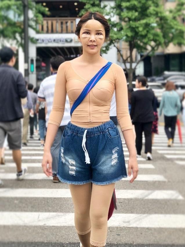 หญิงแย้ ศัลยกรรม เกาหลี