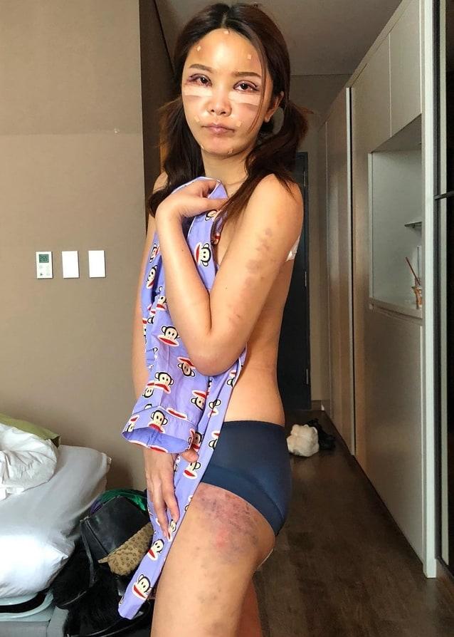 หญิงแย้ นนทพร โชว์หน้าสดบวมเป่ง หลังทำศัลยกรรม ที่เกาหลี