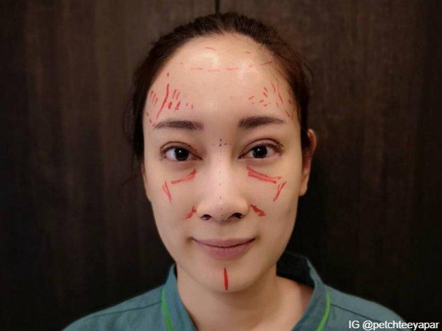 คุณหมอวาดจุดต่าง ๆ บนใบหน้า ด้วยปากกาสีแดง ก่อนการลงมือผ่าตัด