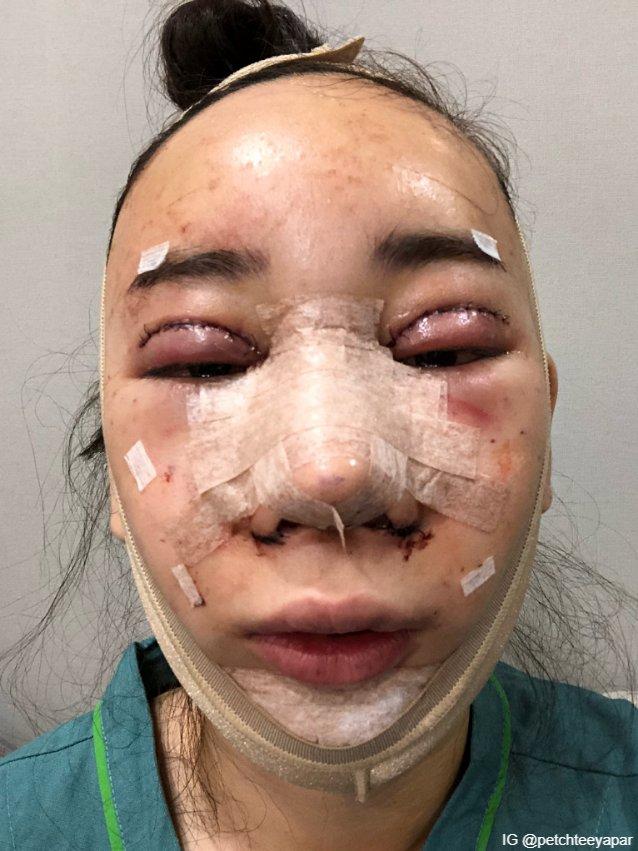 หลังการผ่าตัดที่ยาวนานหลายชั่วโมง ทำตา จมูก เติมไขมันหน้าผาก สเต็มเซล ตัดกราม วีไลน์ เหลาคาง