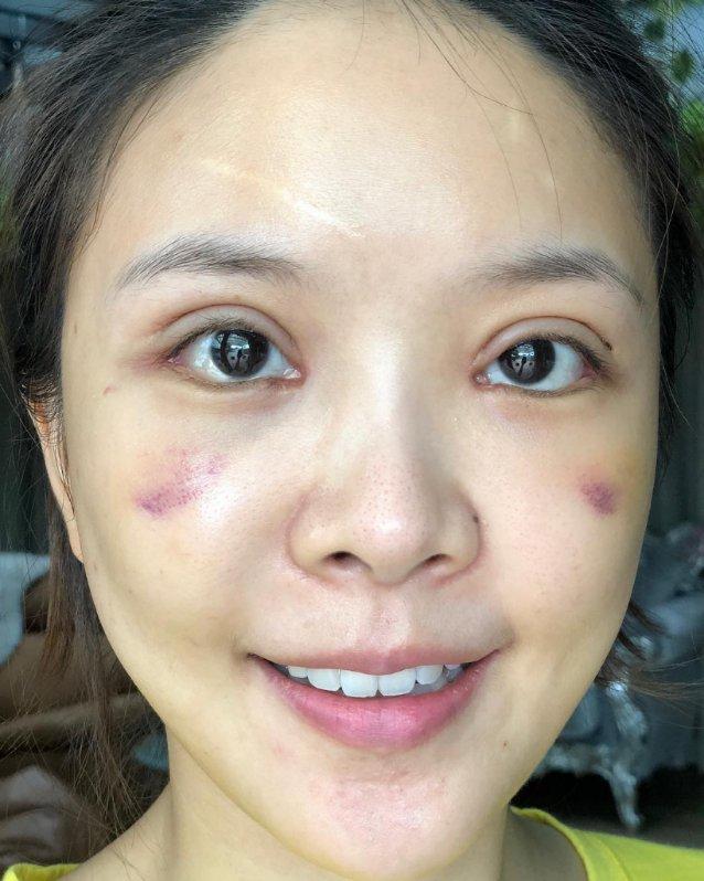 หญิงแย้ หน้าสดแท้ ๆ แบบไร้เมกอัป ฟิลเตอร์ใด ๆ หลังการผ่าตัดได้ 27 วัน