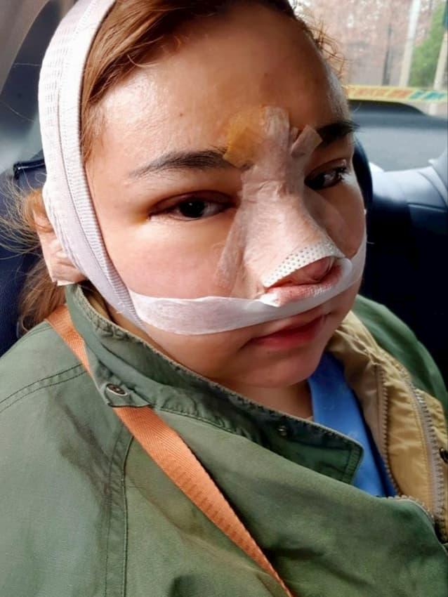 ภาพใบหน้าของ โบรัน น้องคนสุดท้องของ ดีเจบุ๊กโกะ หลังบินไปทำศัลยกรรมที่เกาหลี